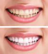 Bleachingmittel mit Wasserstoffperoxiskonzentration über 0,1 % - 6 %: Nur Abgabe an Zahnärzte ist erlaubt