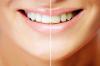 Professionelle Zahnreinigung und Bleaching: Heileingriffe unter zahnärztlichem Vorbehalt